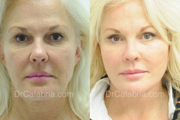 Facelift in Beverly Hills Before and After Picture of a real patient