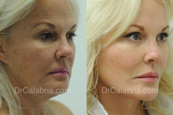 Beverly Hills Facelift Before and After Photo